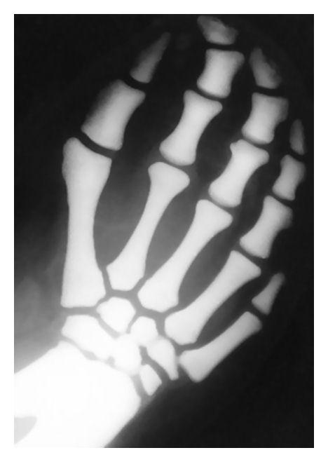 bones in a manatee's flipper